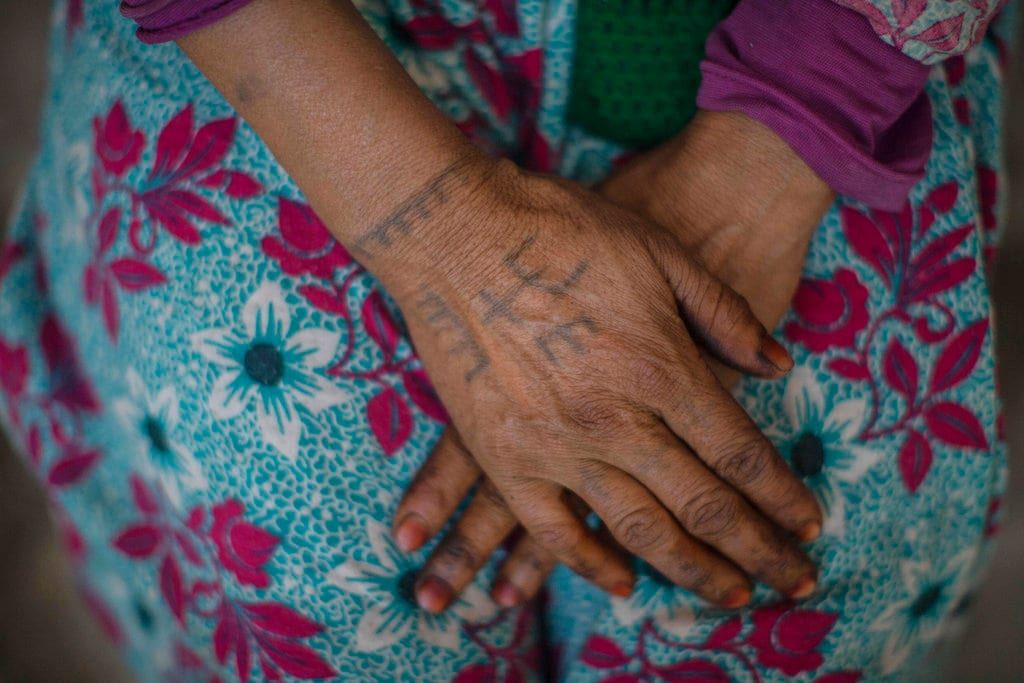 In this Saturday, October 13, 2018 photo, Marhich Rkia Ali, 48, displays tattoos on her arm as she poses for a portrait, in the town of Anregui, near Azilal, central Morocco. (AP Photo/Mosa'ab Elshamy)