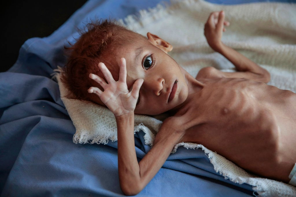 A severely malnourished boy rests on a hospital bed at the Aslam Health Center, in Hajjah, Yemen, on October 1, 2018. Malnutrition, cholera, and other epidemic diseases have ravaged through displaced and impoverished communities in Yemen, threatening to worsen the world's largest humanitarian crisis. (AP Photo/Hani Mohammed)
