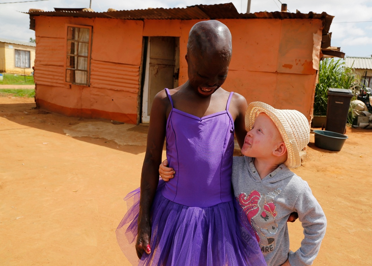 11-year-old burn victim Perlucia Mathebule, left, and her 4-year-old sister, Buhle who has albinism, pose for a photograph outside their one-room shack in Ekangala, South Africa, where the two are spending rare time with one another during the school holidays. Perlucia was badly burned at the age of 6 months and Buhle was born with albinism. (AP Photo/Denis Farrell)