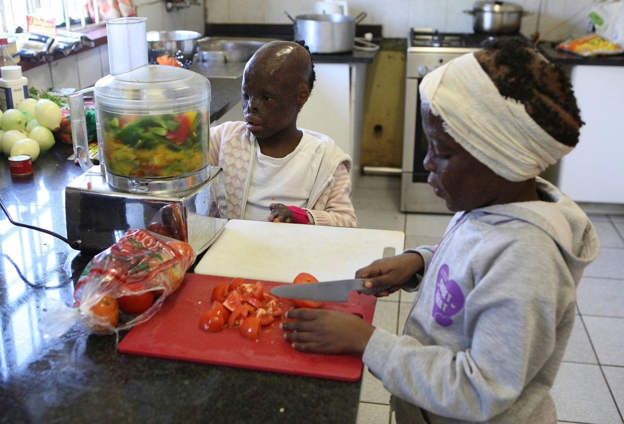 Burn victims Perlucia Mathebule, left, and Mbali Hleza prepare spaghetti bolognese during a cooking lesson at the Child of Fire Charity in Johannesburg. Perlucia was severely burnt when just six months old after she was left in the care of her two-year-old sister. (AP Photo/Denis Farrell)