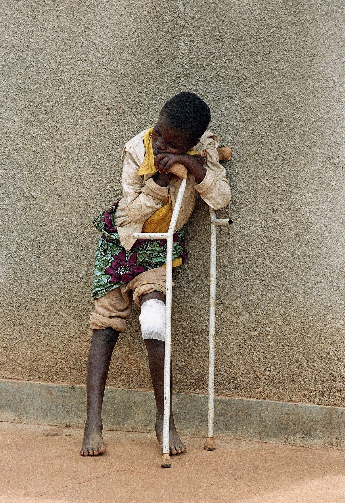 A boy who survived a massacre in the village of Karubamba rests on his crutches at a hospital. (AP Photo/Jean-Marc Bouju, File)