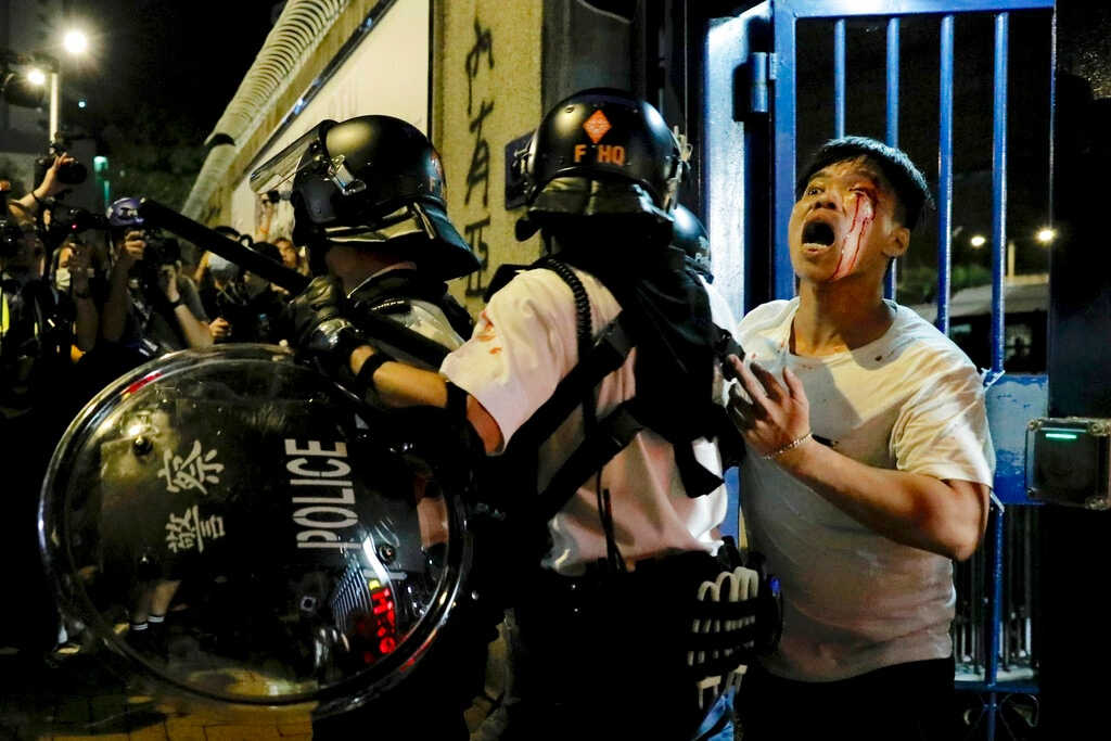 In this Wednesday, July 31, 2019, file photo, a bleeding man is taken away by policemen after being attacked by protesters outside Kwai Chung police station in Hong Kong. Protesters clashed with police again in Hong Kong on Tuesday night after reports that some of their detained colleagues would be charged with the relatively serious charge of rioting. (AP Photo/Vincent Yu, File)