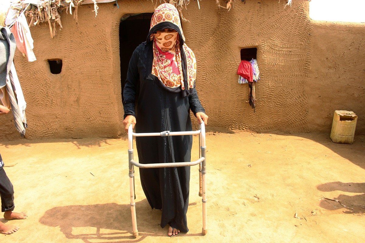 Mariam Ali, 26, who was hit by a crossfire bullet in her leg, uses a walk helper outside her hut at a camp for internally displaced people in Khamis of Hodeidah province. REUTERS/Eissa Alragehi